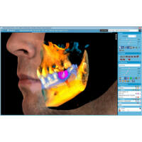 Planmeca ProMax 3D Classic