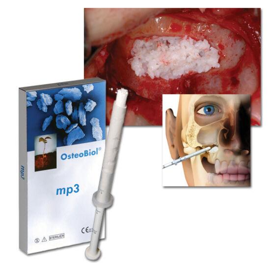Osteobiol MP3 1x2,0cc (600-1000) fecskendő